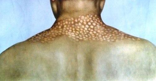ожерелье венеры на шее фото болезнь