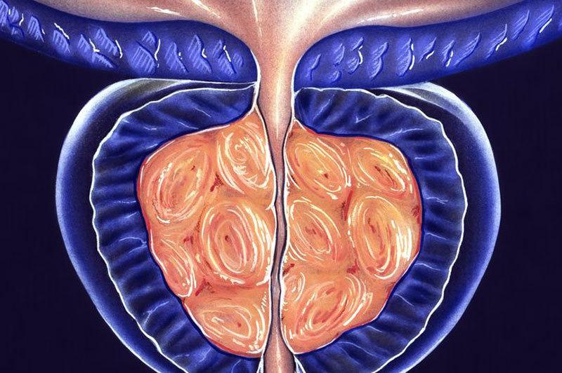 гиперплазия предстательной железы фото