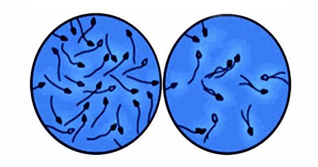Азооспермия фото под микроскопом