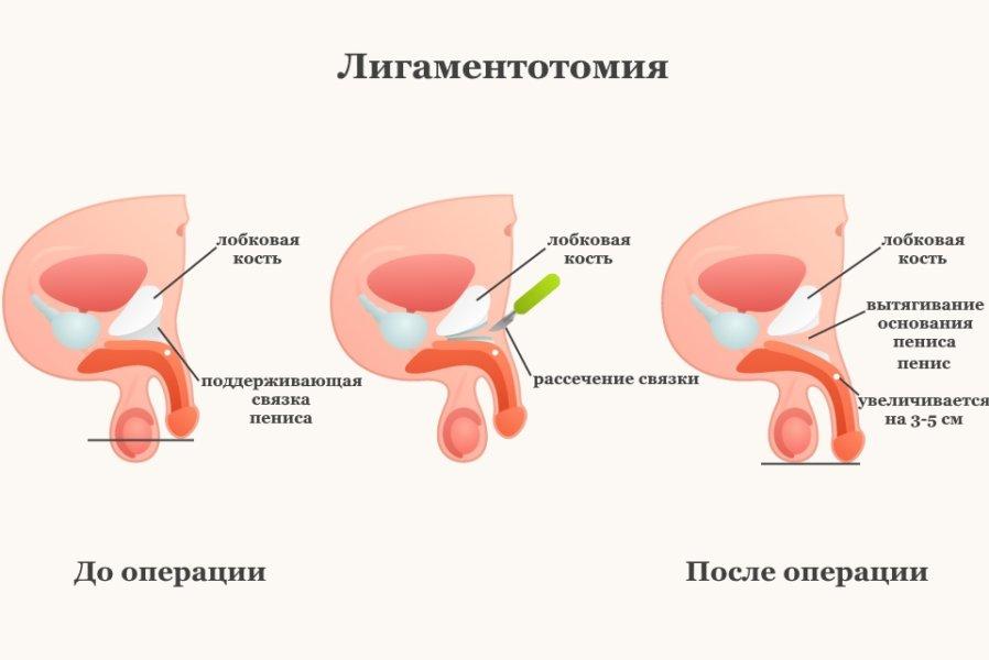 Увеличение члена после лигаментотомии фото